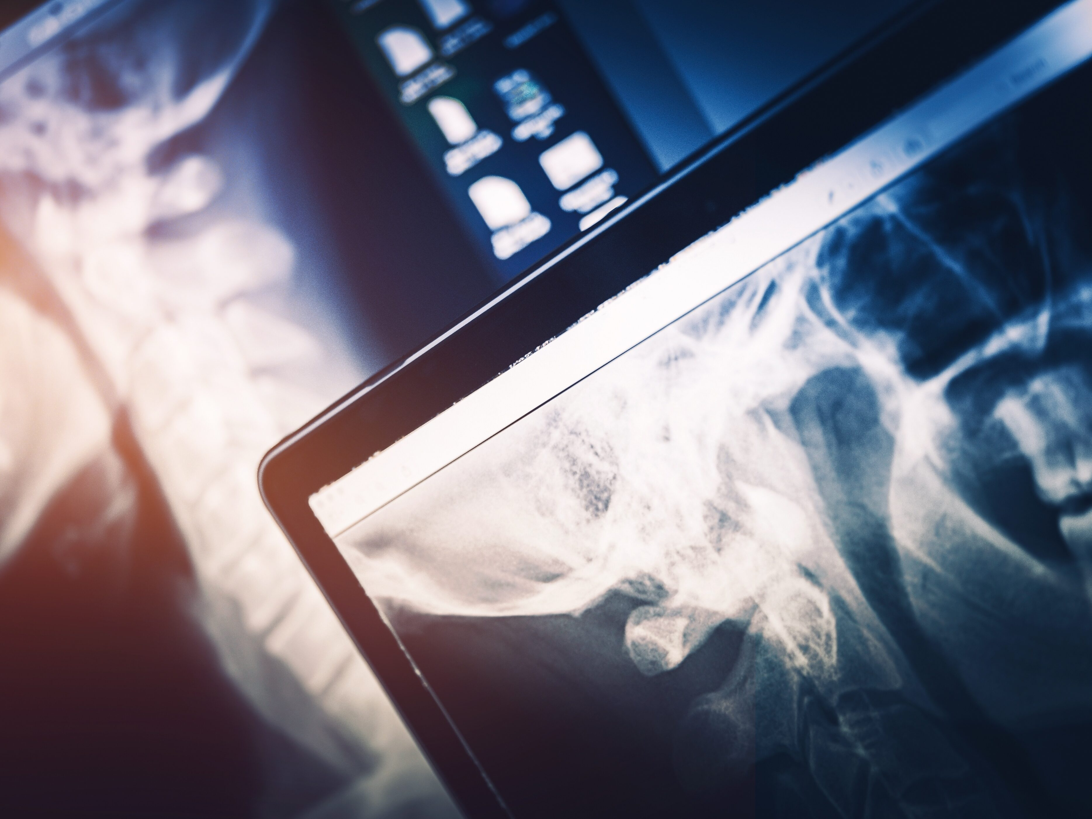 How Radiologists Can Help Identify Domestic Violence