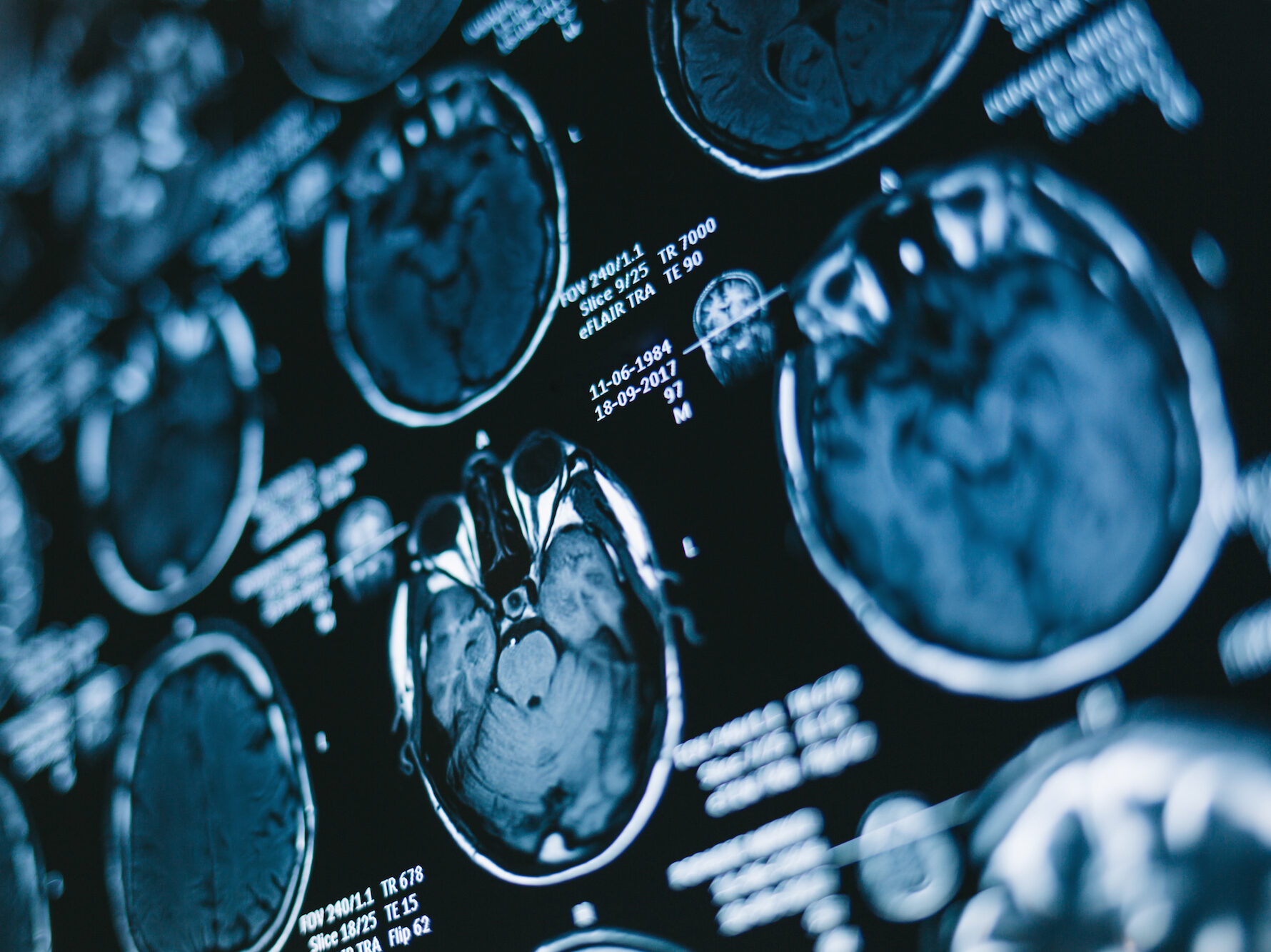 Radiologists Detect Injury Patterns Of Intimate Partner Violence