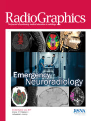 Nontraumatic Spinal Cord Compression: MRI Primer For Emergency Department Radiologists