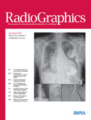 A Simplified Classification Of Proximal Femoral Fractures Improves Accuracy, Confidence, And Inter-Reader Agreement Of Hip Fracture Classification By Radiology Residents